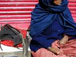Mujer con lepra