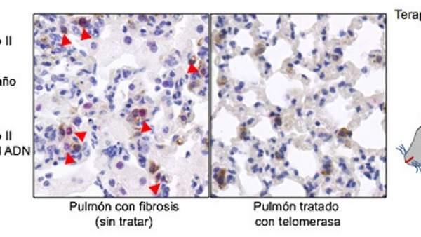 Dos científicas españolas logran curar la fibrosis pulmonar en ratones