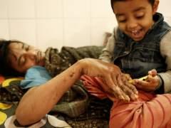 El 'hombre árbol' de Bangladesh abandona toda esperanza de cura