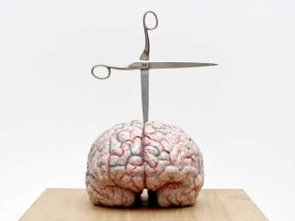 Jan Fabre. Brain with Star, 2012.