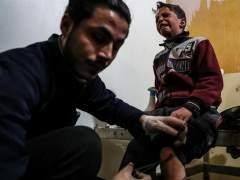 Más de 300 muertos ya en Guta tras otra jornada de bombardeos