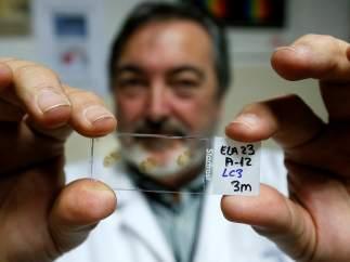A medio millón de euros para un ensayo en humanos que frene la ELA