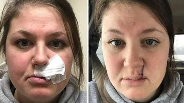 Una mujer comparte sus secuelas de cáncer de piel para concienciar sobre los rayos UVA