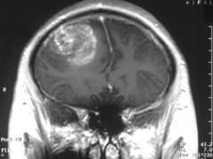 Constatan que el virusdel constipado destruye células del tumor cerebral