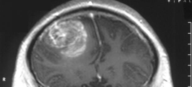 Constatan que virus del constipado destruye células madre del tumor cerebral