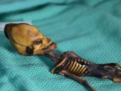 El 'esqueleto de Atacama' no es de un alien