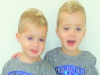 Dos gemelos con una enfermedad rara
