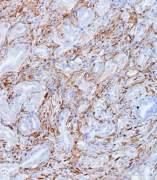Células tumorales de cáncer de páncreas, mostrando en marrón la Galectina 1