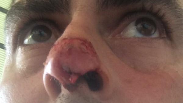 Un futbolista, con parte de la nariz arrancada