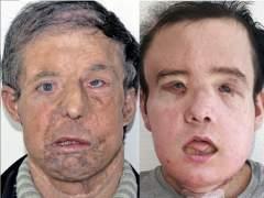 Jérôme Hamon, la primera persona que supera dos trasplantes de rostro