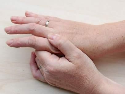 ¿En qué puede derivar el hormigueo de pies y manos?