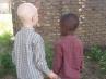 El drama de los niños albinos en África continúa: una niña es decapitada