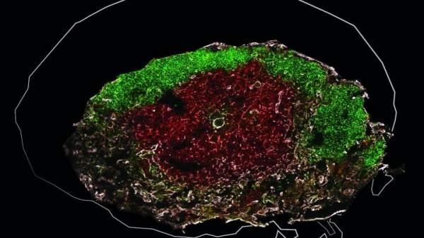 Las lombrices intestinales dificultan la vacunación contra la tuberculosis