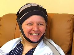 Un casco evita la caída del pelo que provoca la quimioterapia