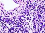 Carcinoma de pulmón de células pequeñas
