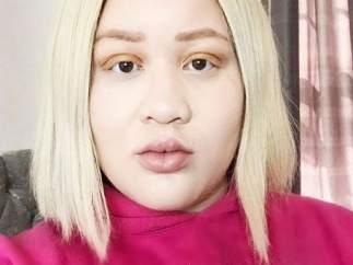 Modelo albina