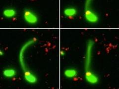 Obtienen por primera vez la imagen en la que una bacteria deriva en superbacteria