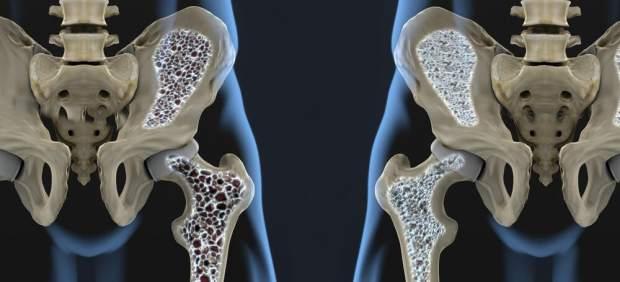 Una de cada 3 mujeres mayores de 50 años sufrirá fractura por osteoporosis
