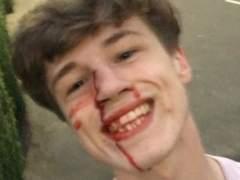 Un joven se hace un 'selfie' sonriendo tras recibir una agresión homófoba