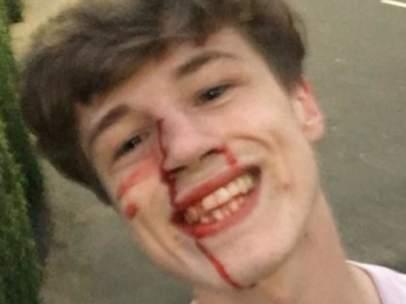 El joven agredido que ha compartido la foto en Facebook