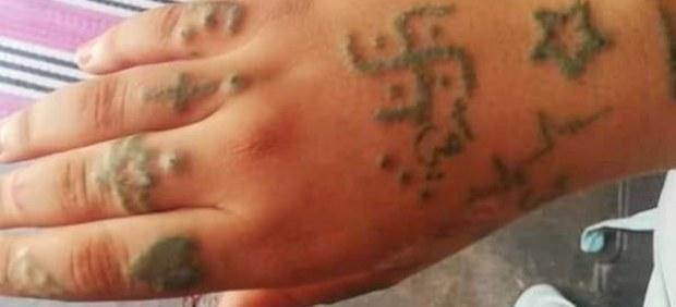 Imagen de la mano tatuada y quedama de la joven violada en Marruecos.