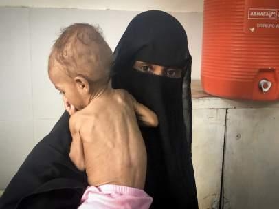 Niño con desnutrición en Yemen