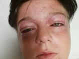 Tyler tiene los ojos abultados e inyectados en sangre.