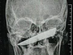 Los médicos no se explican cómo este hombre ha podido salir ileso...