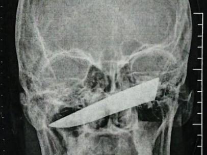 Imágenes del cuchillo clavado en la cara del hombre.