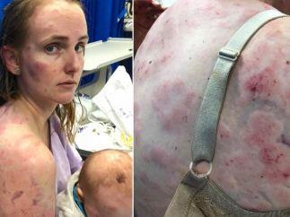 Heridas de Fionna Simpson
