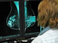 """Blanca Cantos, oncóloga: """"Hay más casos pero más supervivencia"""""""