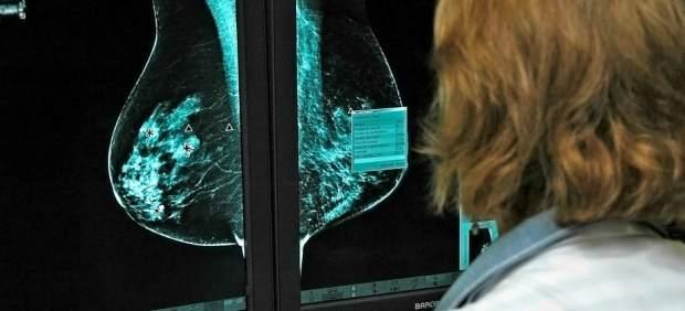 Blanca Cantos, oncóloga experta en cáncer de mama:
