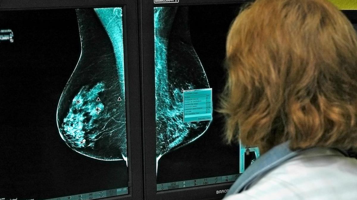 Llega a España un fármaco que mejora el cáncer de mama metastásico