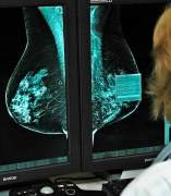 Investigación sobre el cáncer de mama