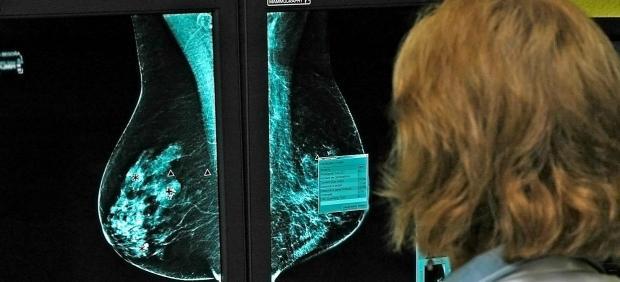 Sanidad financiará las prótesis de mama a pacientes de cáncer