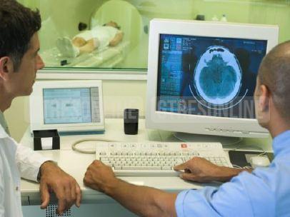 Médicos observando escáner cerebral