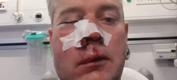 Brutal paliza a un árbitro en Irlanda propinada por los propios jugadores