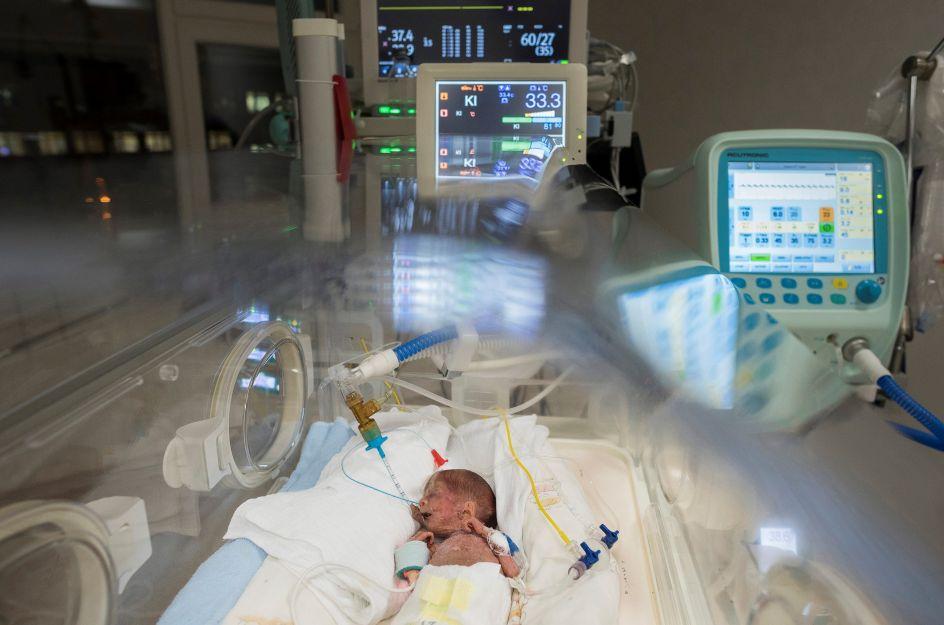 Agarrándose a la vida. Un bebé prematuro descansa en una incubadora en la Unidad de Cuidados Intensivos de Neonatos del hospital universitario Josa Andras, en Nyiregyhaza (Hungría). El Día Mundial del Recién Nacido Prematuro se celebra cada 17 de noviembre.