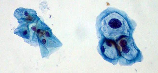 Virus del Papiloma Humano (VPH).