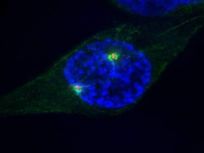 Célula humana durante su división