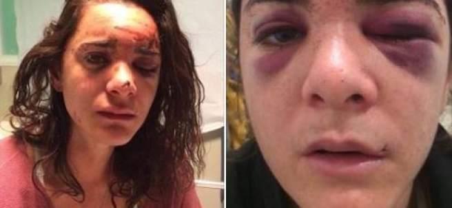 Violación y agresión