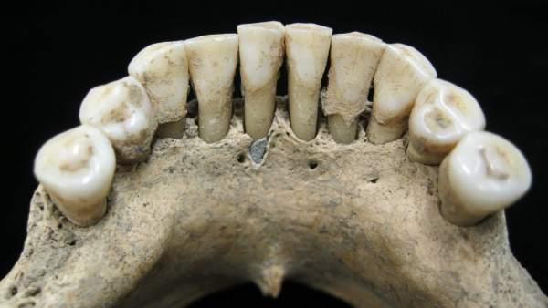 Lapislázuli en los dientes