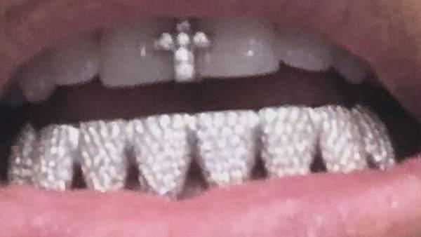 La última excentricidad de Kim Kardashian: diamantes en sus dientes   862259-600-338