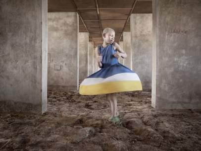 Durante 4 años, retrató en la serie 'Albino' (aquí, una imagen de 2012) el drama que viven «desde un punto de vista esperanzador».