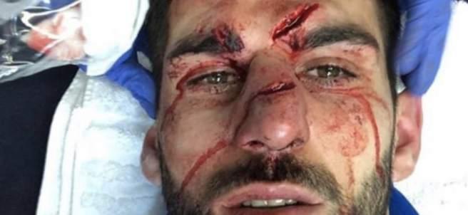 Nelson Oliveira, después de recibir un duro pisotón en la cara.