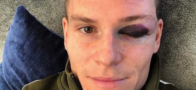 La cara de Kevin Gameiro tras su choque con Piqué