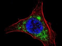 Célula infectada
