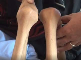 La dramática historia de una adolescente que huye de la guerra en Yemen y pesa solo 10 kilos