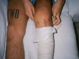Héctor Bellerín muestra su cicatriz.