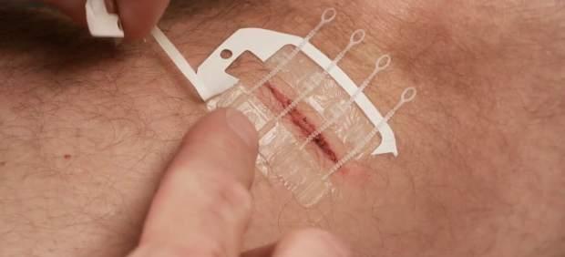 ZipStitch, la nueva tirita para cerrar heridas